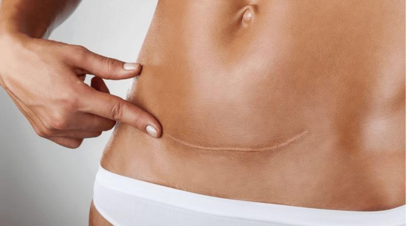 Bajar de peso tras cesarea