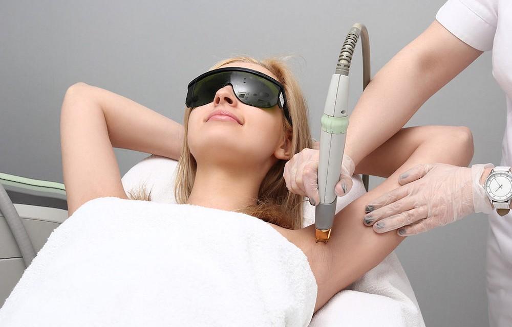 ¿La depilación láser funciona? Mi experiencia